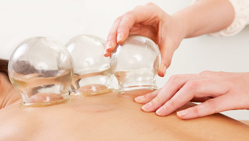 acupuncture cupping therapy
